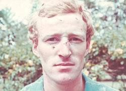 A young Garry Roche at Ulga after encounter with intruder, 1972