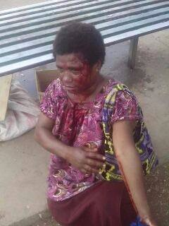 Vendor beaten by Port Moresby police