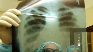Checking an X-ray for TB