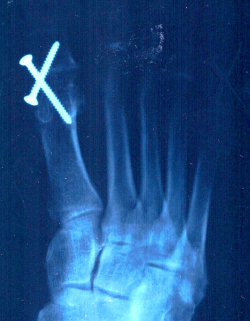 My screwed right foot
