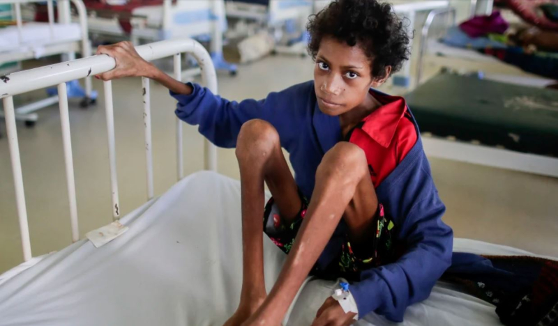 Patricia Oome  14  a week after being admitted to hospital for severe malnutrition and tuberculosis (Alex Ellinghausen)