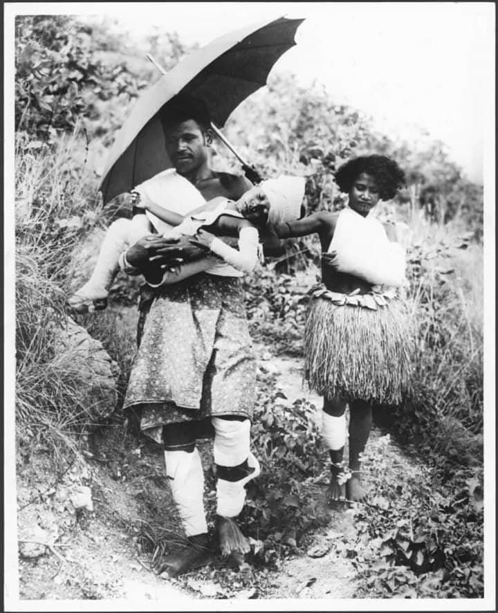 Man  daughter and son  all with burns  escaping eruption  1951 (Fred Kleckham - PNGAA)