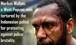 West Papuan man tortured police after a peaceful protest